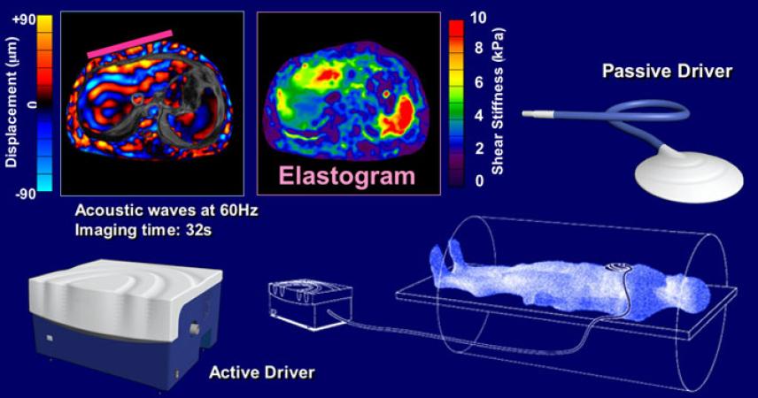 MRE Magnetic Resonance Elastography